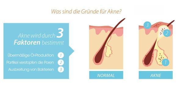 Wie Akne entsteht