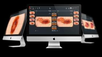 Künstliche Intelligenz in der Dermatoskopie
