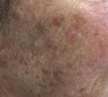 Aktinische Haut - typische lichtbedingte Veränderungen der Haut